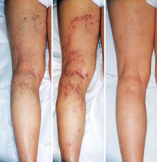 Phlebotherapy of Varicose Veins